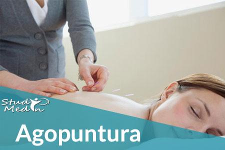 Agopuntura: tecniche e benefici - Studio MedIn Milano