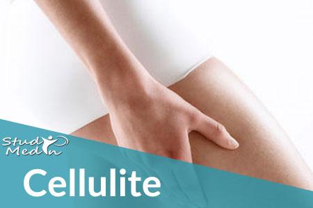 Rimedi e cure anticellulite - Studio MedIn